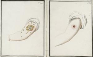 Dibujo de principios del siglo XIX donde se comparan los progresos de sendas intervenciones por medio de inoculación de viruela humana (izquierda) y de la recién descubierta vacunación de viruela bovina (derecha), 16 días después. Como es perceptible, la vacuna primitiva hacía bastantes menos estragos en la zona de administración que la inoculación. Además, reducía la mortalidad y no era contagiosa, a diferencia de los pacientes inoculados, que podían contagiar la viruela. Por estos motivos la vacuna sustituyó en muy pocos años a la variolización, salvo en determinados lugares donde estaba muy asentada la inoculación tradicional, como Sudán, India o Asia central.